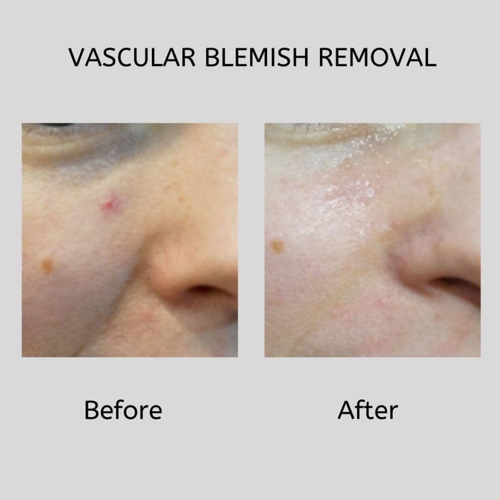 Vascular Blemis Removal Before and After